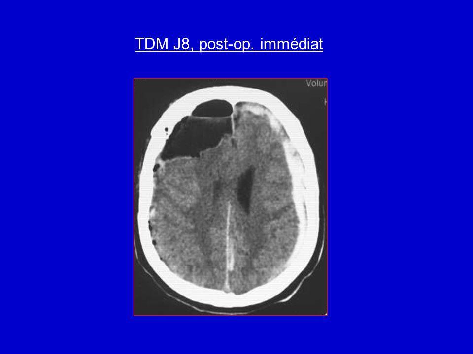 TDM J8, post-op. immédiat