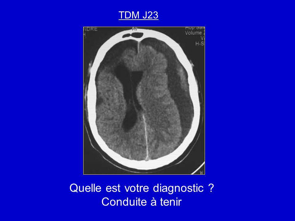 TDM J23 Quelle est votre diagnostic ? Conduite à tenir