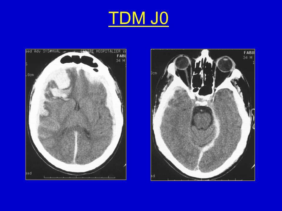 Evolution Décision: BO pour évacuation HSDCG ( tréphine, drainage 48h) Coma cortico-sous-cortical, puis éveil progressif J29: extubé, conscient, pas de déficit moteur, syndrome frontal