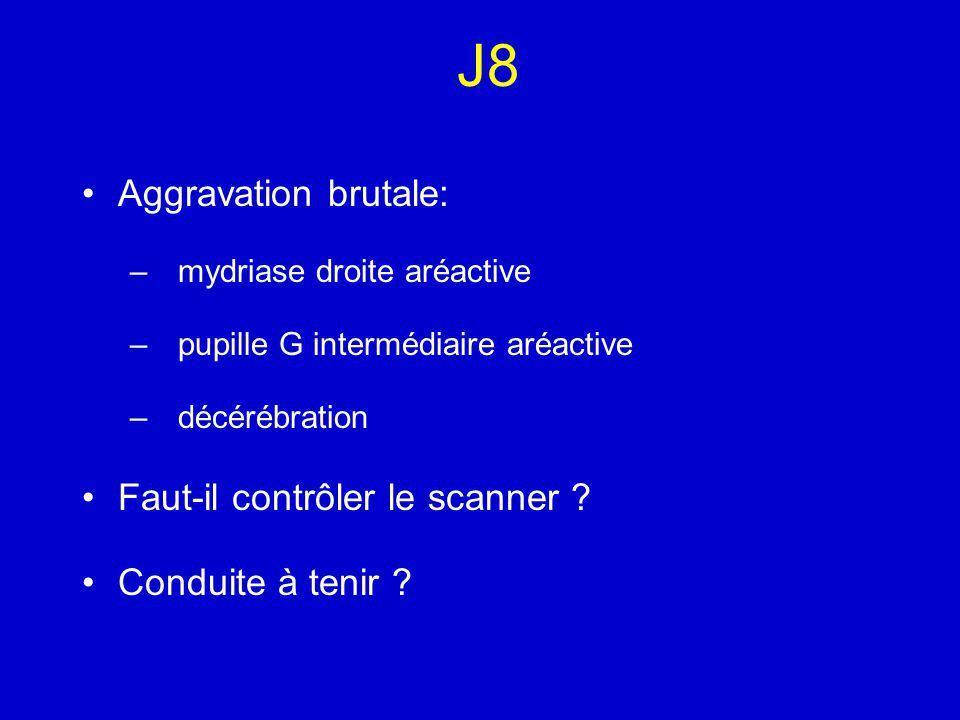 J8 Aggravation brutale: – mydriase droite aréactive – pupille G intermédiaire aréactive – décérébration Faut-il contrôler le scanner .