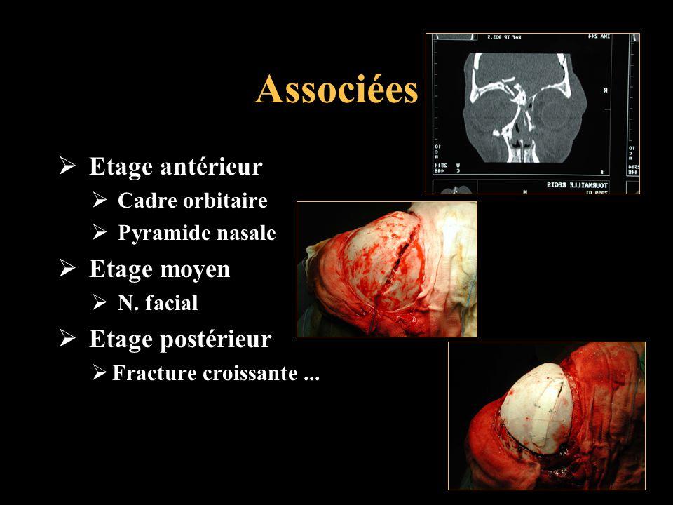 Associées Etage antérieur Cadre orbitaire Pyramide nasale Etage moyen N. facial Etage postérieur Fracture croissante...