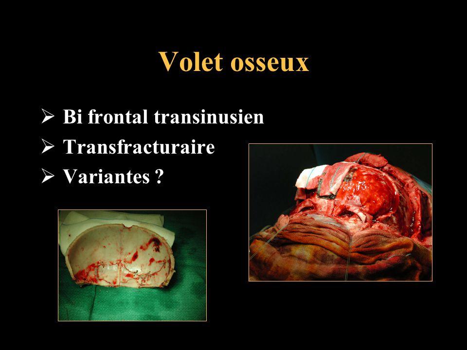 Volet osseux Bi frontal transinusien Transfracturaire Variantes ?