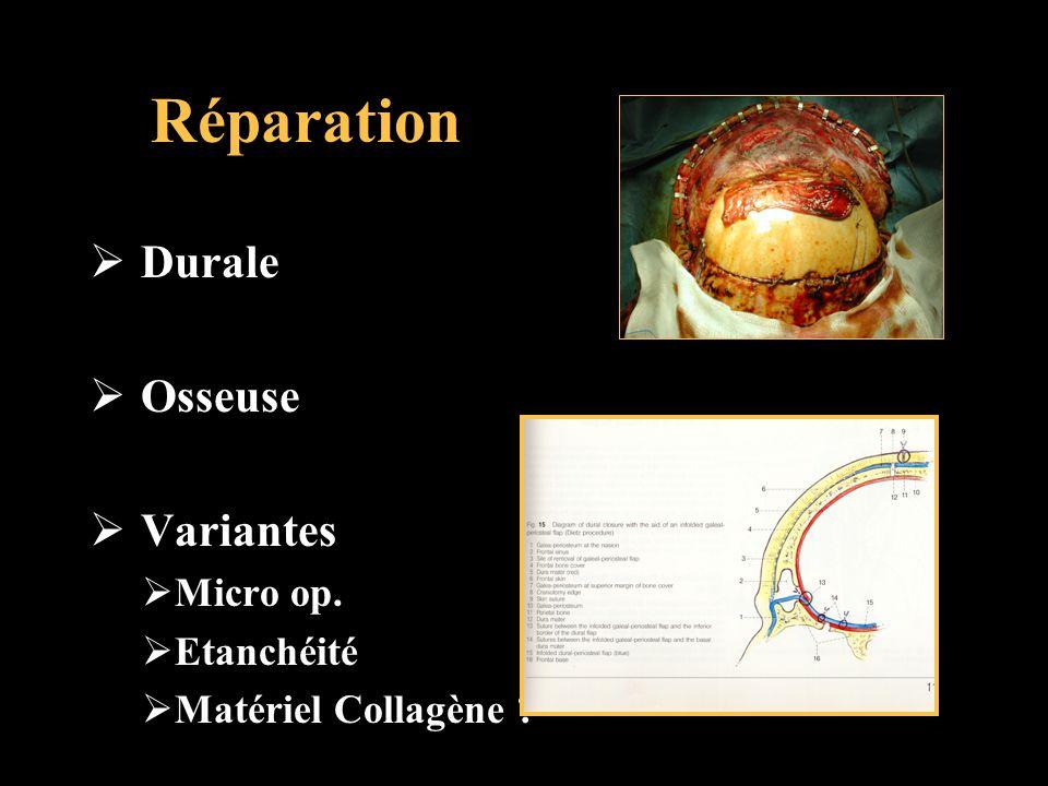 Réparation Durale Osseuse Variantes Micro op. Etanchéité Matériel Collagène ?