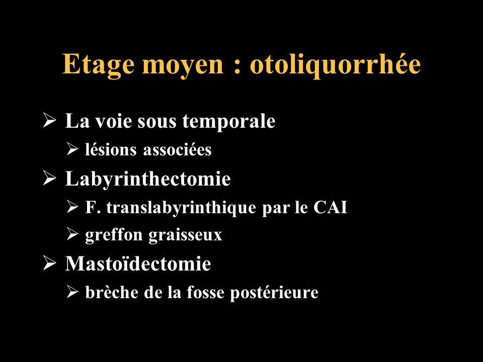Etage moyen : otoliquorrhée La voie sous temporale lésions associées Labyrinthectomie F. translabyrinthique par le CAI greffon graisseux Mastoïdectomi