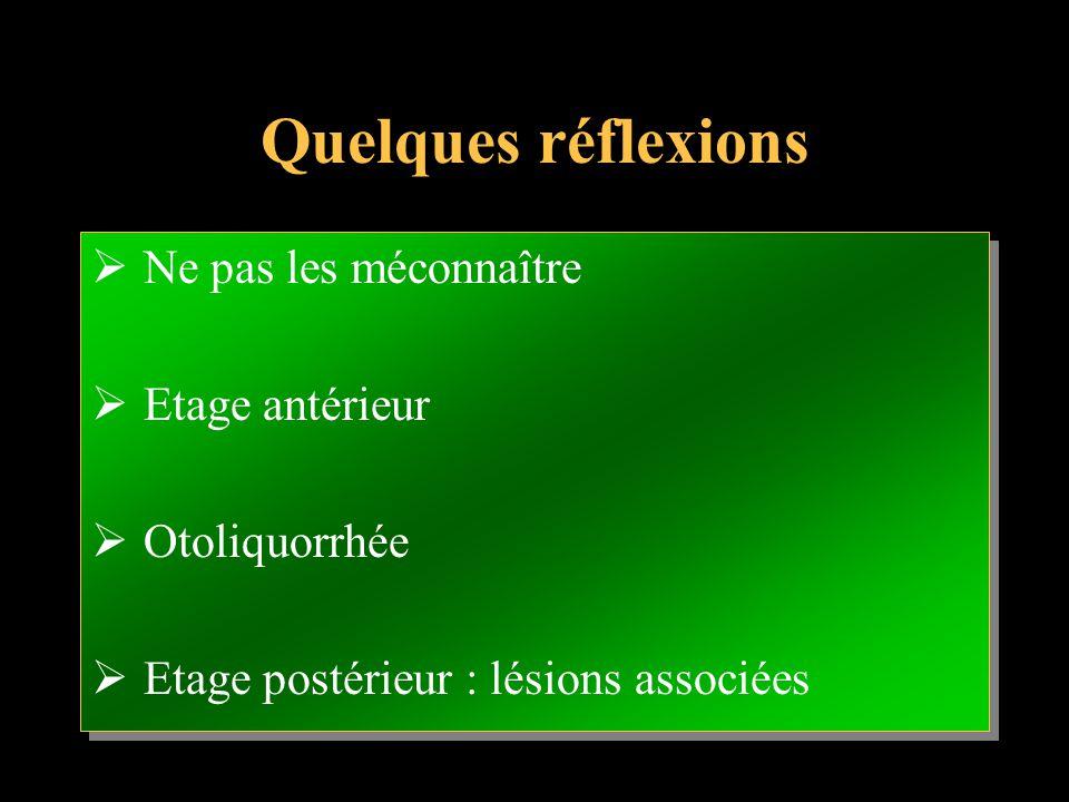 Quelques réflexions Ne pas les méconnaître Etage antérieur Otoliquorrhée Etage postérieur : lésions associées Ne pas les méconnaître Etage antérieur O