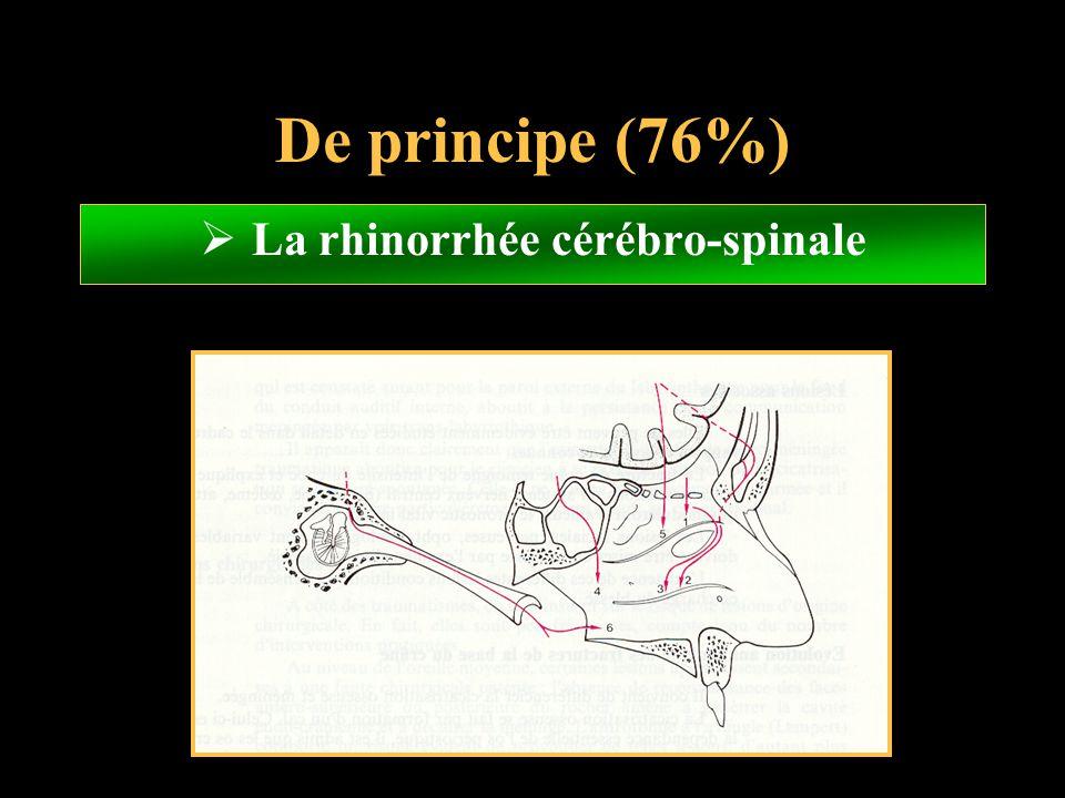 De principe (76%) La rhinorrhée cérébro-spinale