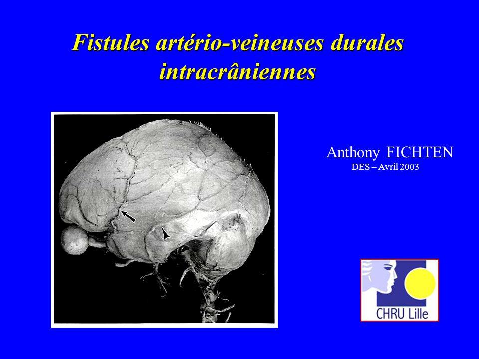 Fistules artério-veineuses durales intracrâniennes Anthony FICHTEN DES – Avril 2003