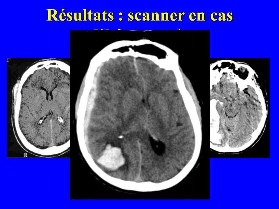 Résultats : scanner en cas dhémorragie