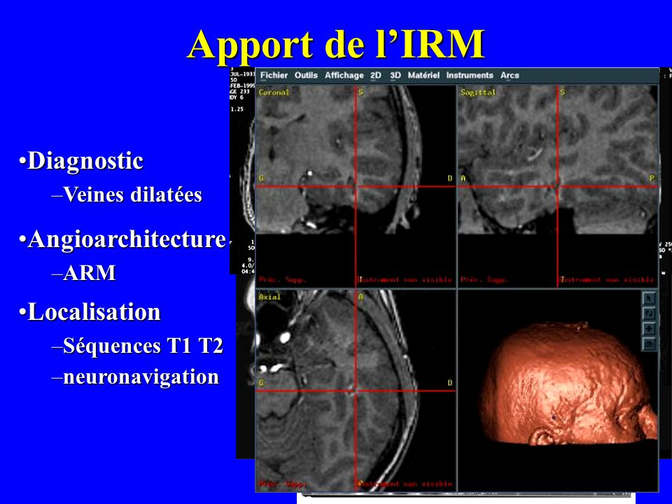 Apport de lIRM AngioarchitectureAngioarchitecture –ARM LocalisationLocalisation –Séquences T1 T2 –neuronavigation DiagnosticDiagnostic –Veines dilatée