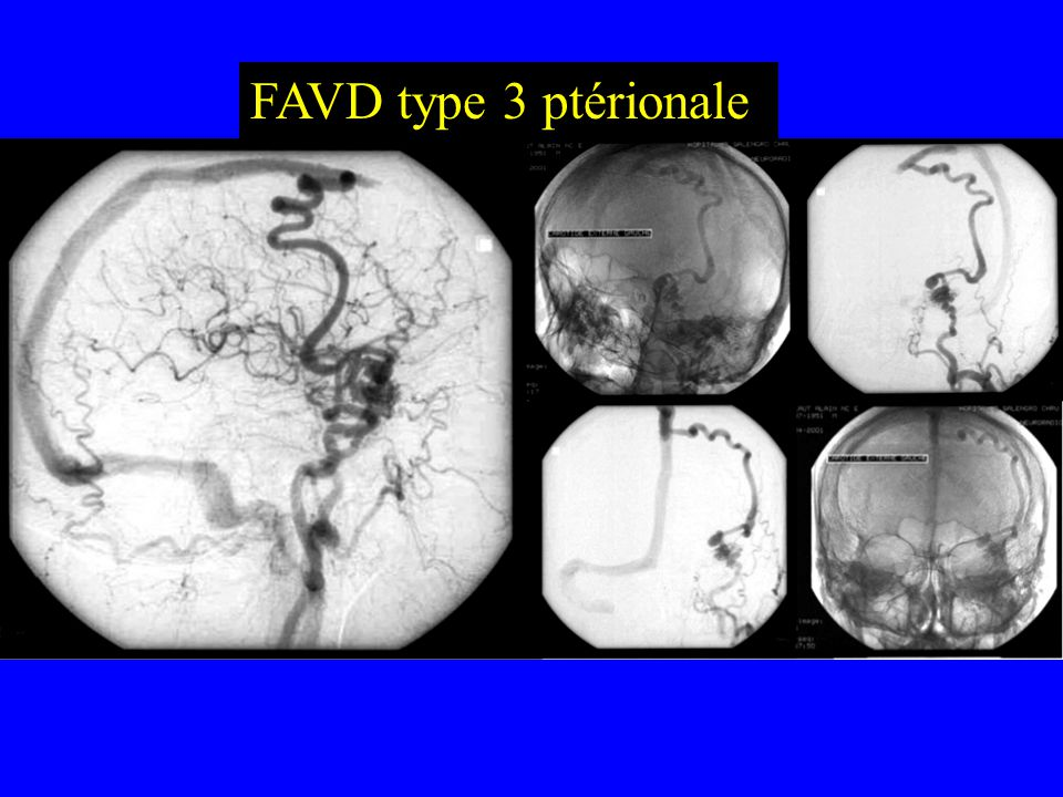 Topographie des fistules Convexité paramédiane 7 Étage antérieur 4 Ptérion3 Sinus latéral 11 Tente / drainage profond 13