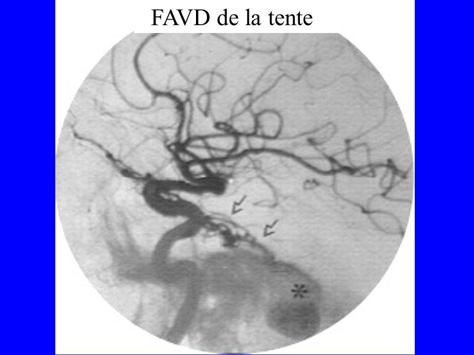 Apport de lIRM AngioarchitectureAngioarchitecture –ARM LocalisationLocalisation –Séquences T1 T2 –neuronavigation DiagnosticDiagnostic –Veines dilatées