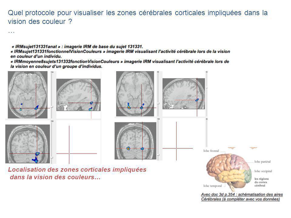 Quel protocole pour visualiser les zones cérébrales corticales impliquées dans la vision des couleur ? … Localisation des zones corticales impliquées