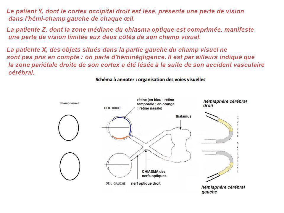 Le patient Y, dont le cortex occipital droit est lésé, présente une perte de vision dans l'hémi-champ gauche de chaque œil. La patiente Z, dont la zon