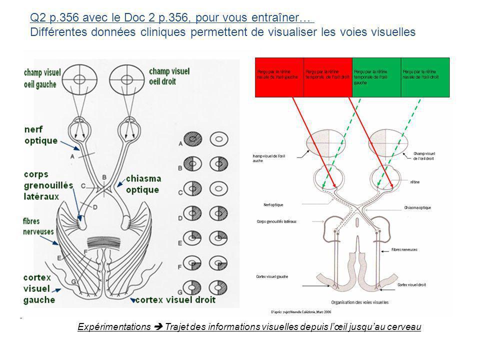 Q2 p.356 avec le Doc 2 p.356, pour vous entraîner… Différentes données cliniques permettent de visualiser les voies visuelles Expérimentations Trajet