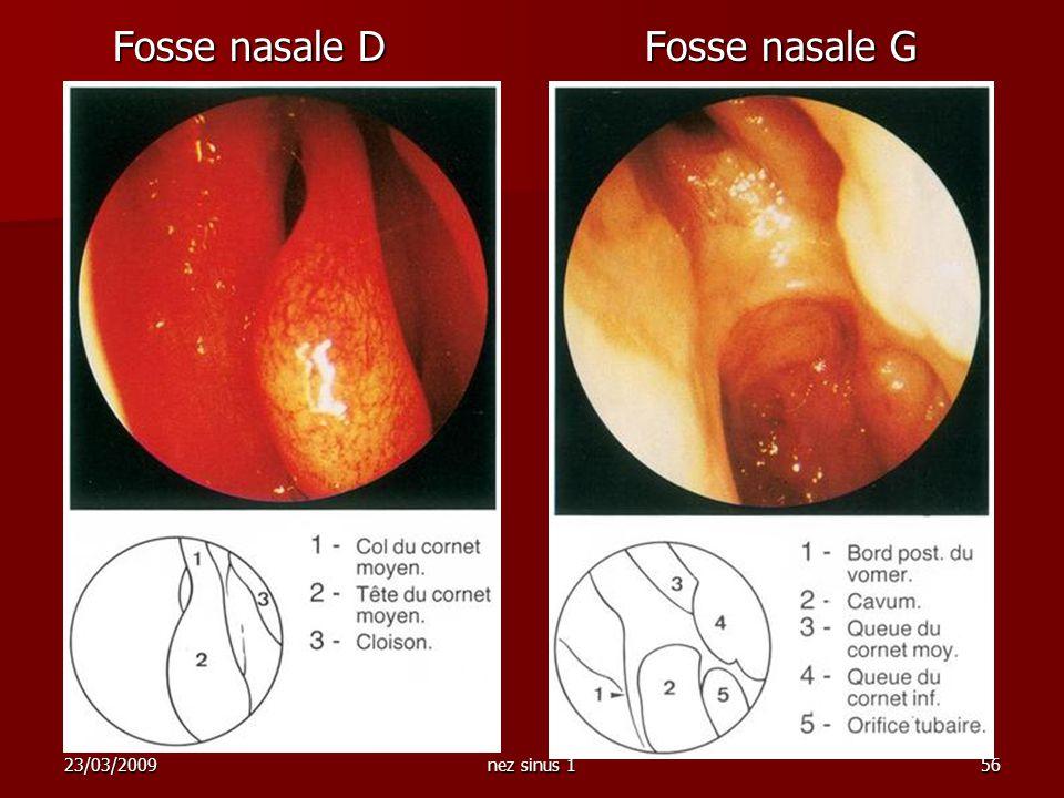 23/03/2009nez sinus 156 Fosse nasale D Fosse nasale G Fosse nasale D Fosse nasale G