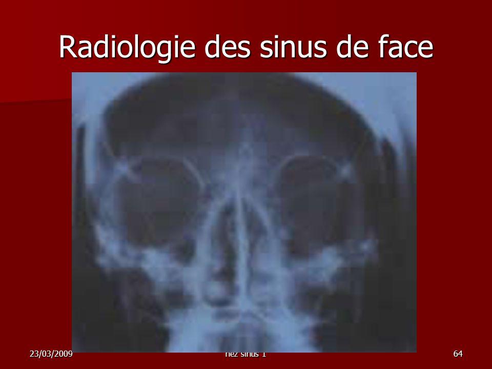 23/03/2009nez sinus 164 Radiologie des sinus de face