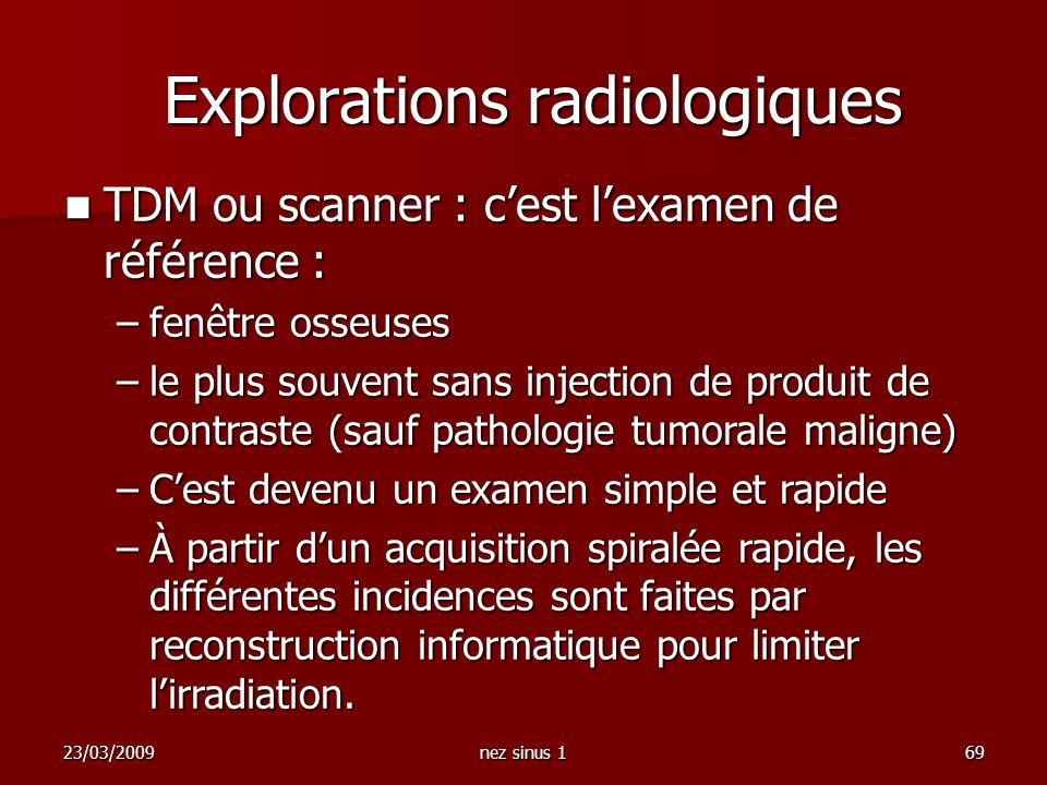 23/03/2009nez sinus 169 TDM ou scanner : cest lexamen de référence : TDM ou scanner : cest lexamen de référence : –fenêtre osseuses –le plus souvent s