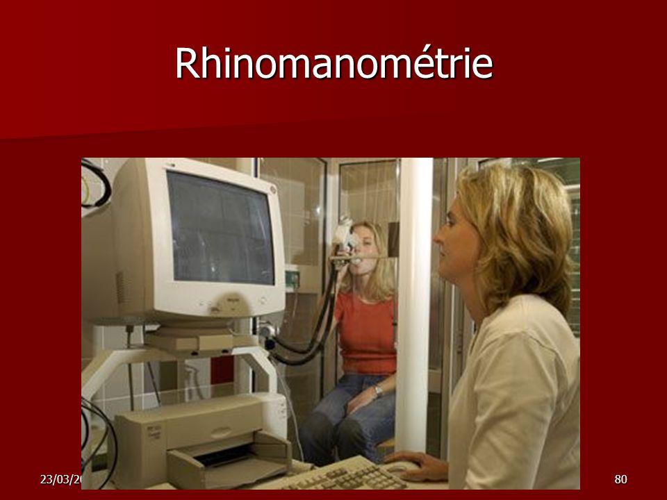 23/03/2009nez sinus 180 Rhinomanométrie