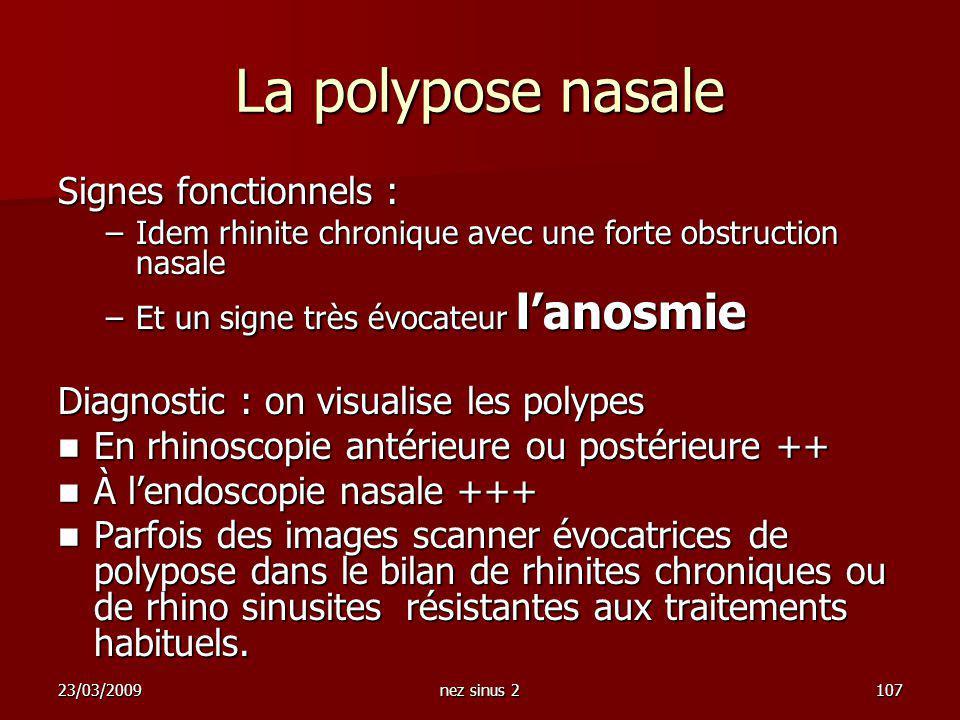 23/03/2009nez sinus 2107 La polypose nasale Signes fonctionnels : –Idem rhinite chronique avec une forte obstruction nasale –Et un signe très évocateu