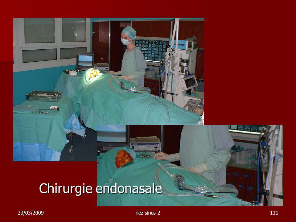 23/03/2009nez sinus 2111 Chirurgie endonasale