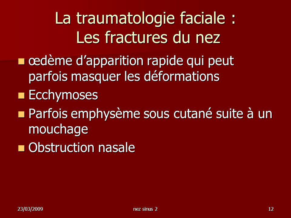 23/03/2009nez sinus 212 La traumatologie faciale : Les fractures du nez œdème dapparition rapide qui peut parfois masquer les déformations œdème dappa