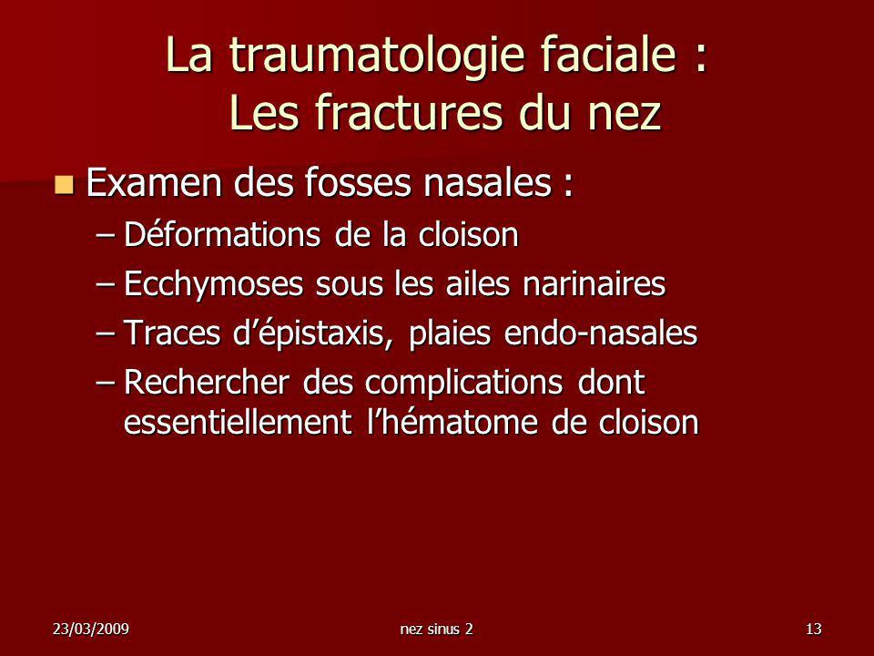 23/03/2009nez sinus 213 La traumatologie faciale : Les fractures du nez Examen des fosses nasales : Examen des fosses nasales : –Déformations de la cl