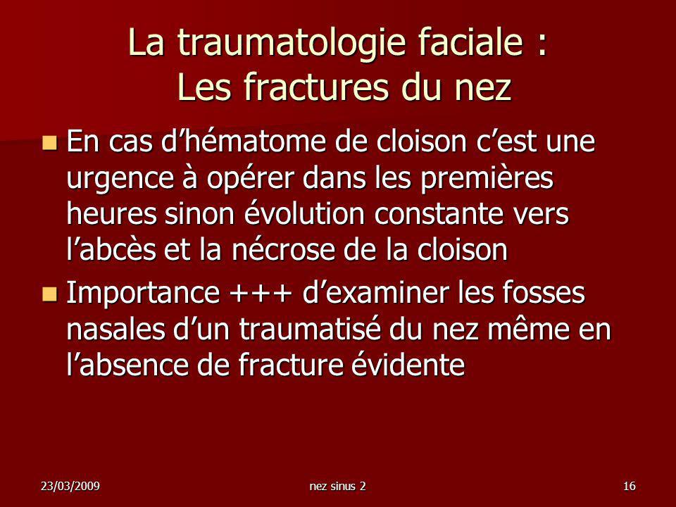 23/03/2009nez sinus 216 La traumatologie faciale : Les fractures du nez En cas dhématome de cloison cest une urgence à opérer dans les premières heure