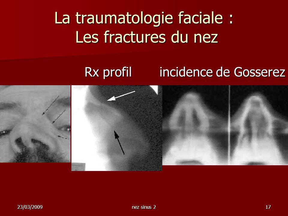 23/03/2009nez sinus 217 La traumatologie faciale : Les fractures du nez Rx profil incidence de Gosserez Rx profil incidence de Gosserez