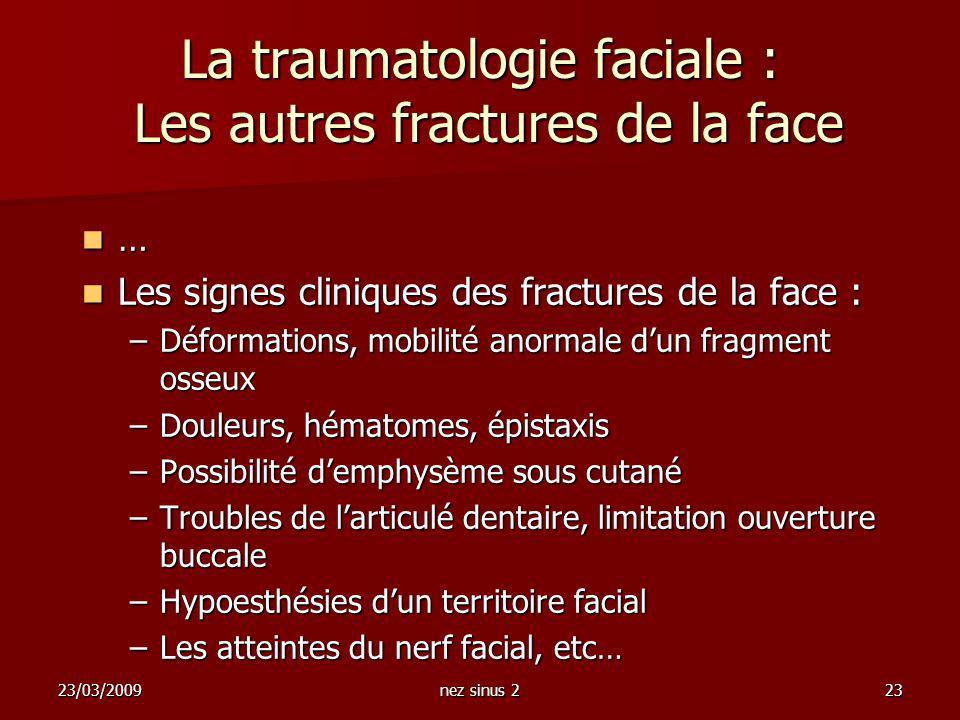 23/03/2009nez sinus 223 La traumatologie faciale : Les autres fractures de la face … Les signes cliniques des fractures de la face : Les signes cliniq