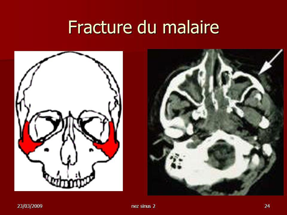 23/03/2009nez sinus 224 Fracture du malaire