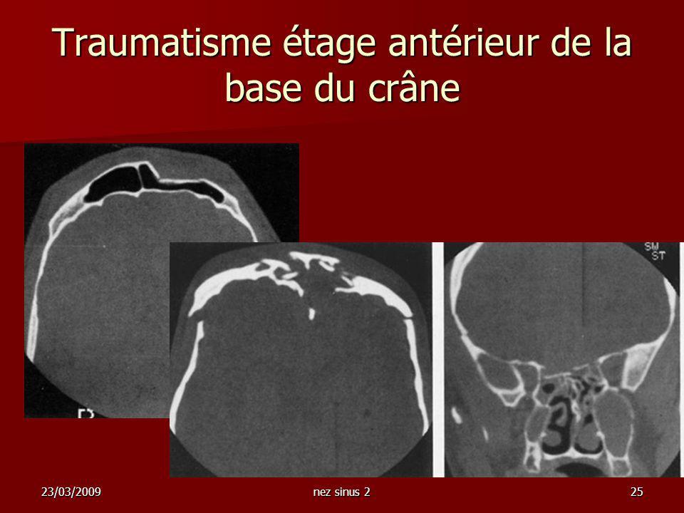 23/03/2009nez sinus 225 Traumatisme étage antérieur de la base du crâne