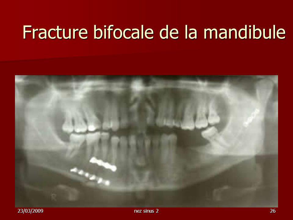 23/03/2009nez sinus 226 Fracture bifocale de la mandibule