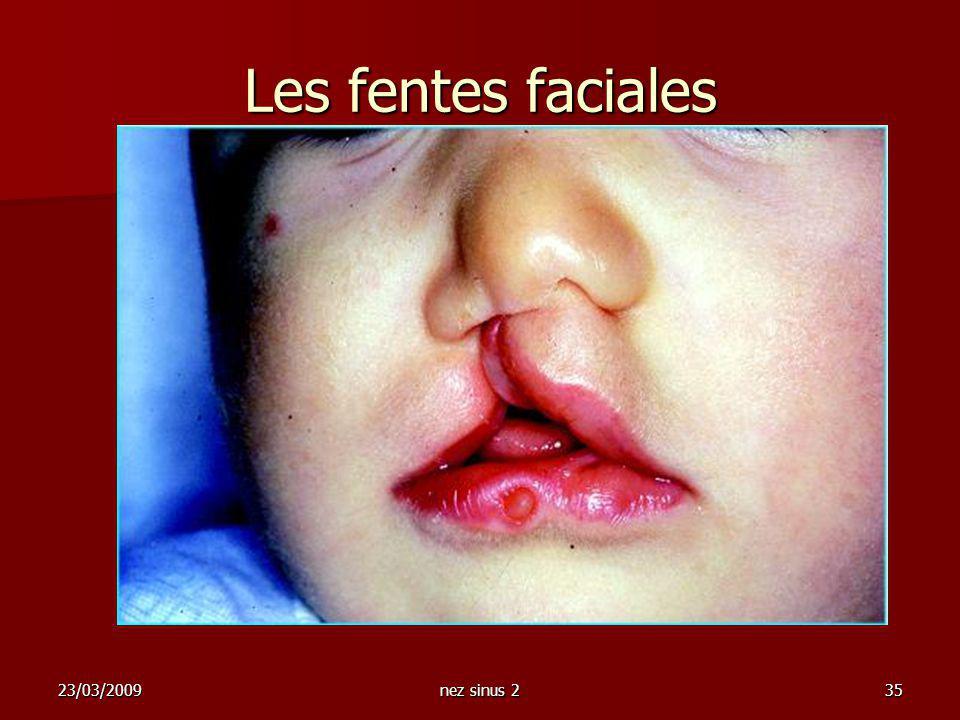 23/03/2009nez sinus 235 Les fentes faciales