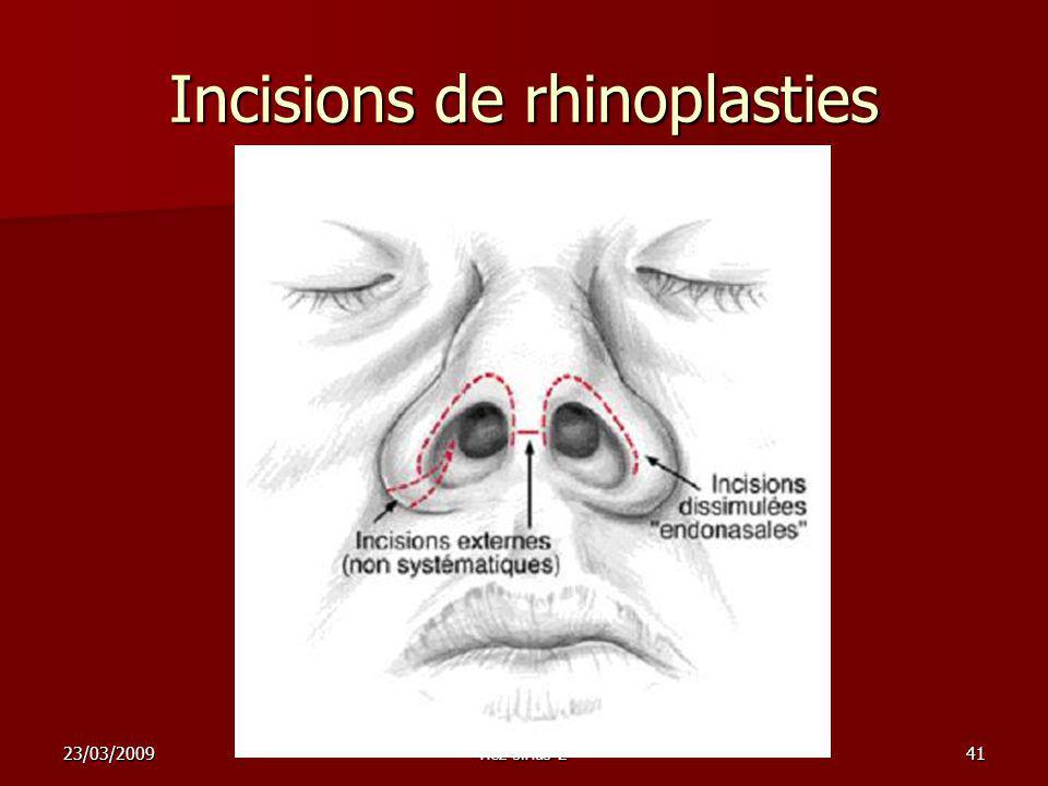 23/03/2009nez sinus 241 Incisions de rhinoplasties