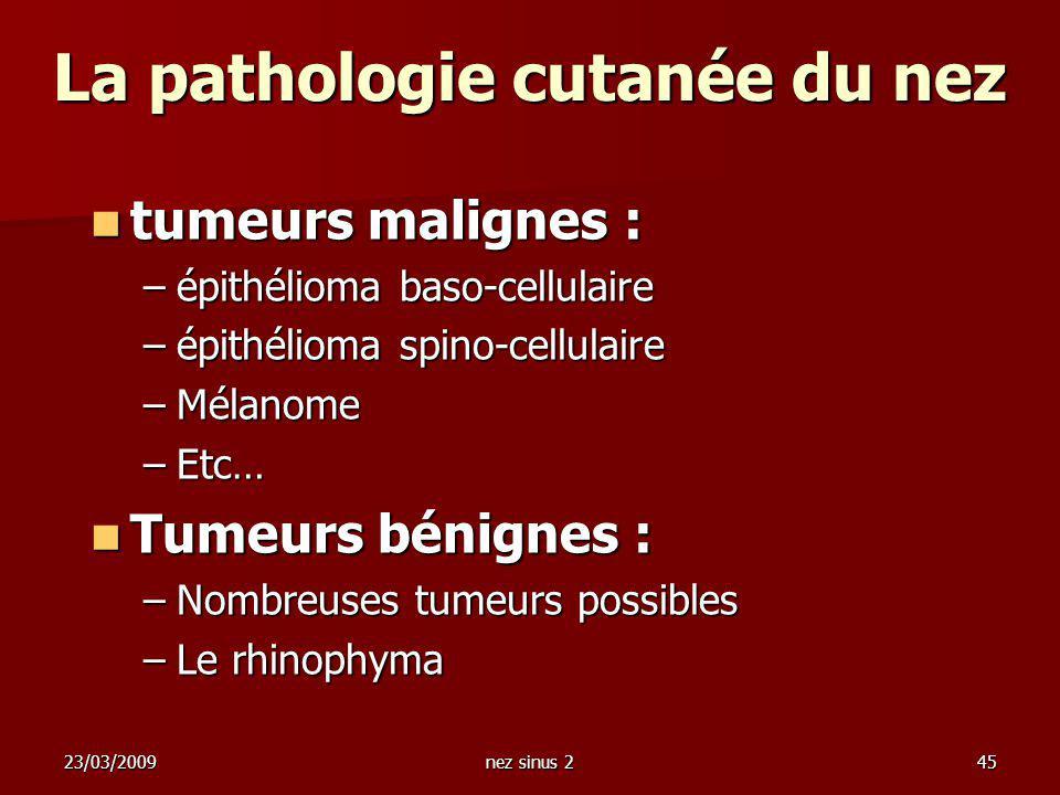 23/03/2009nez sinus 245 La pathologie cutanée du nez tumeurs malignes : tumeurs malignes : –épithélioma baso-cellulaire –épithélioma spino-cellulaire