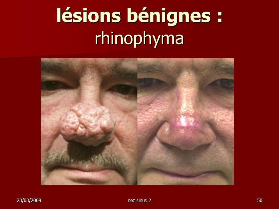 23/03/2009nez sinus 250 lésions bénignes : rhinophyma