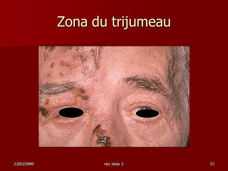 23/03/2009nez sinus 253 Zona du trijumeau