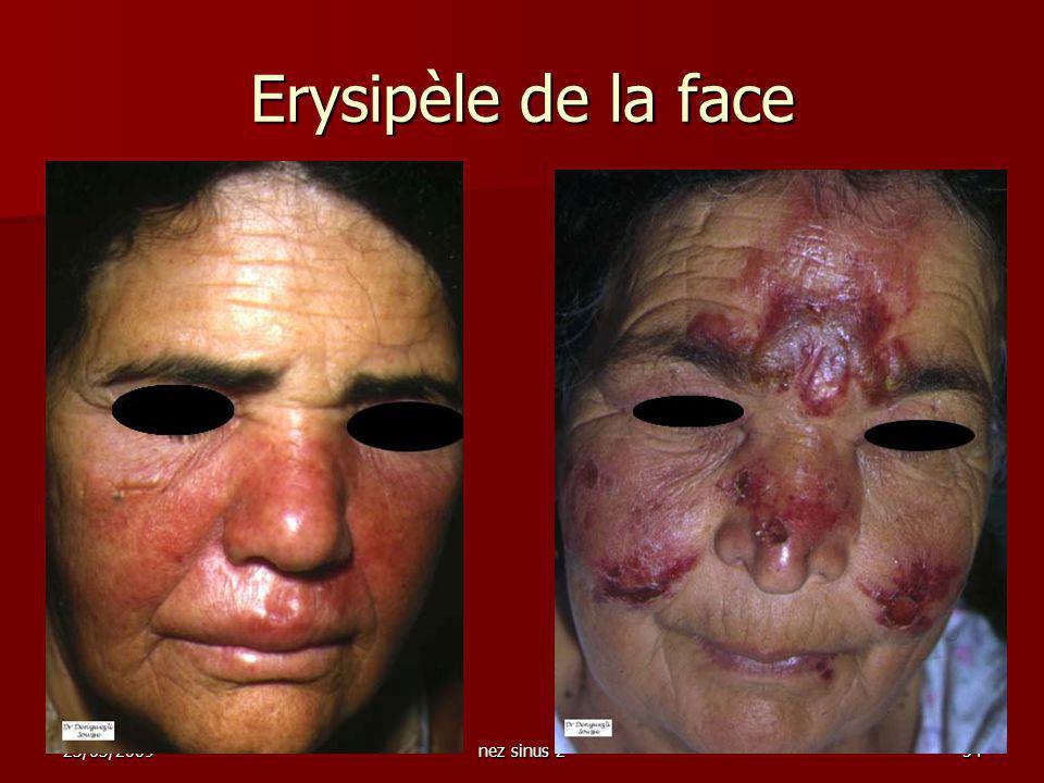 23/03/2009nez sinus 254 Erysipèle de la face
