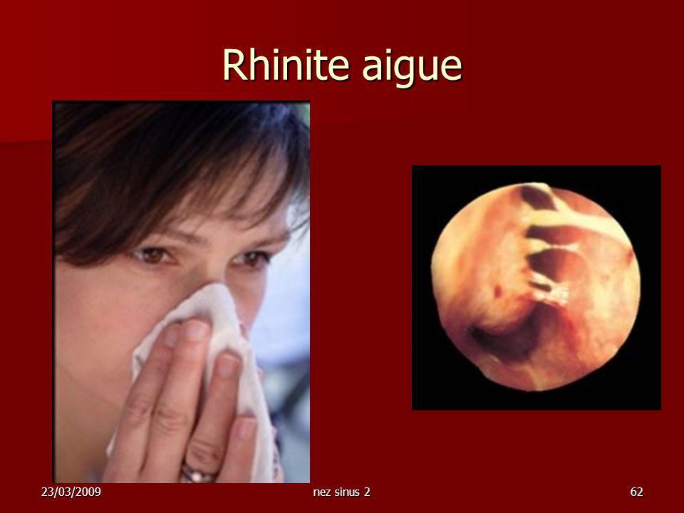 23/03/2009nez sinus 262 Rhinite aigue