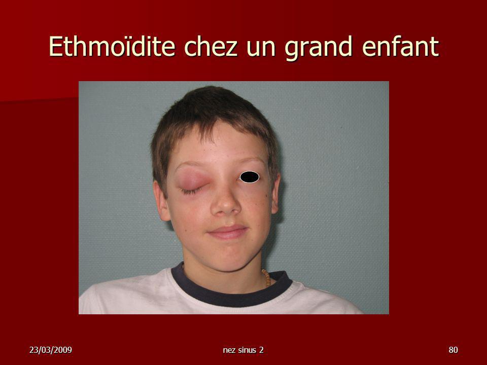 23/03/2009nez sinus 280 Ethmoïdite chez un grand enfant