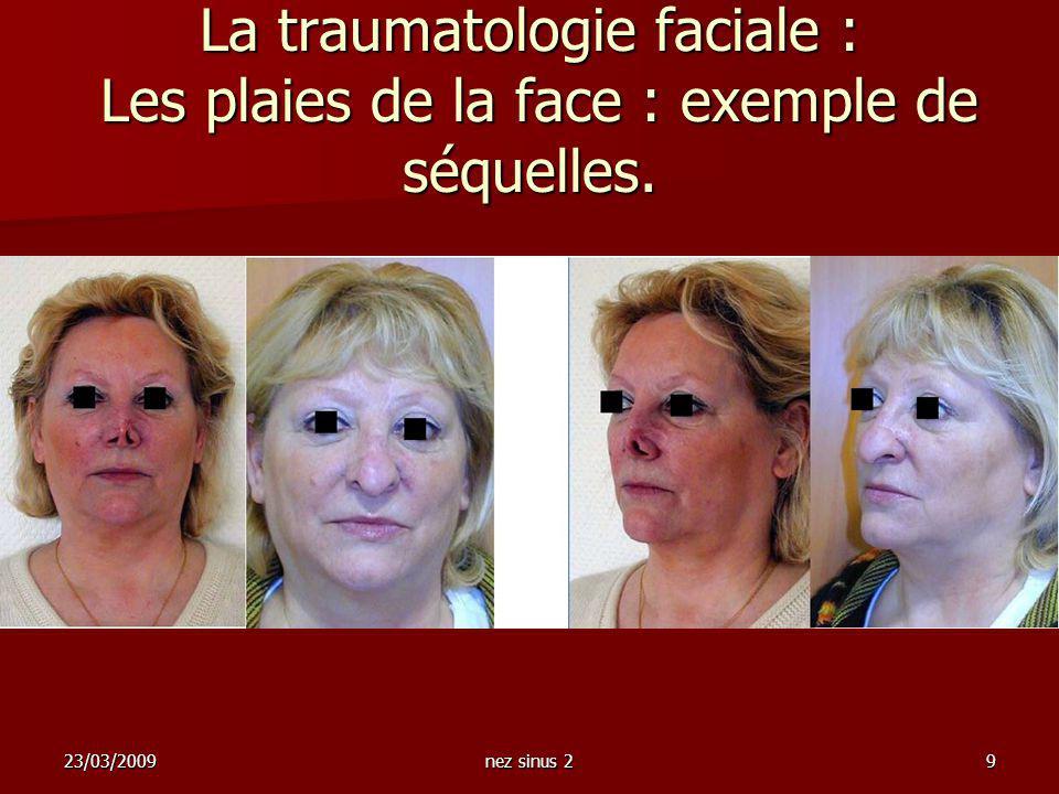 23/03/2009nez sinus 29 La traumatologie faciale : Les plaies de la face : exemple de séquelles.