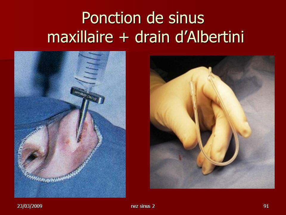 23/03/2009nez sinus 291 Ponction de sinus maxillaire + drain dAlbertini