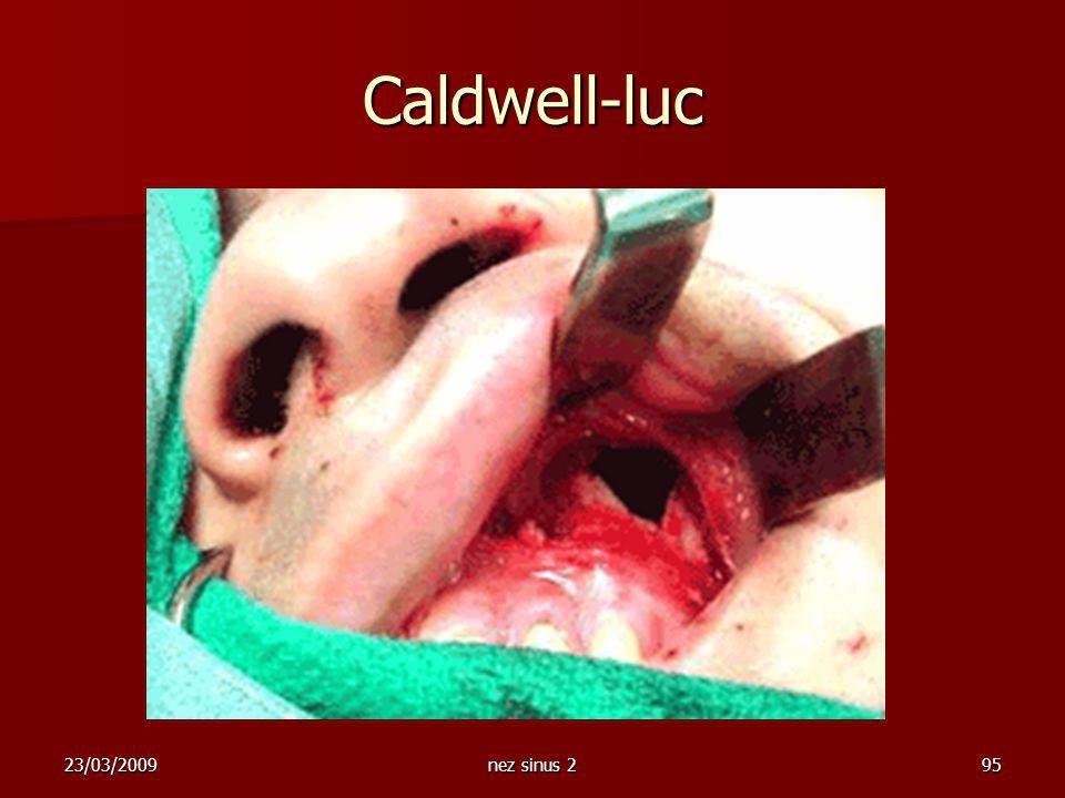 23/03/2009nez sinus 295 Caldwell-luc