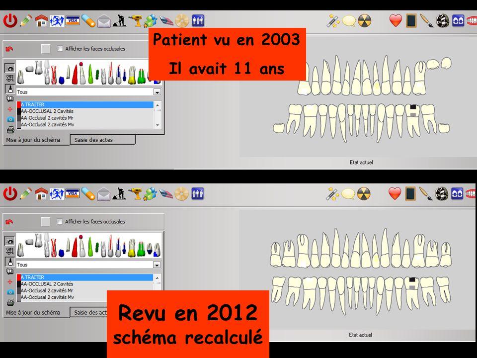 Patient vu en 2003 Il avait 11 ans Revu en 2012 schéma recalculé