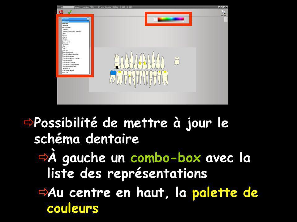 Possibilité de mettre à jour le schéma dentaire À gauche un combo-box avec la liste des représentations Au centre en haut, la palette de couleurs