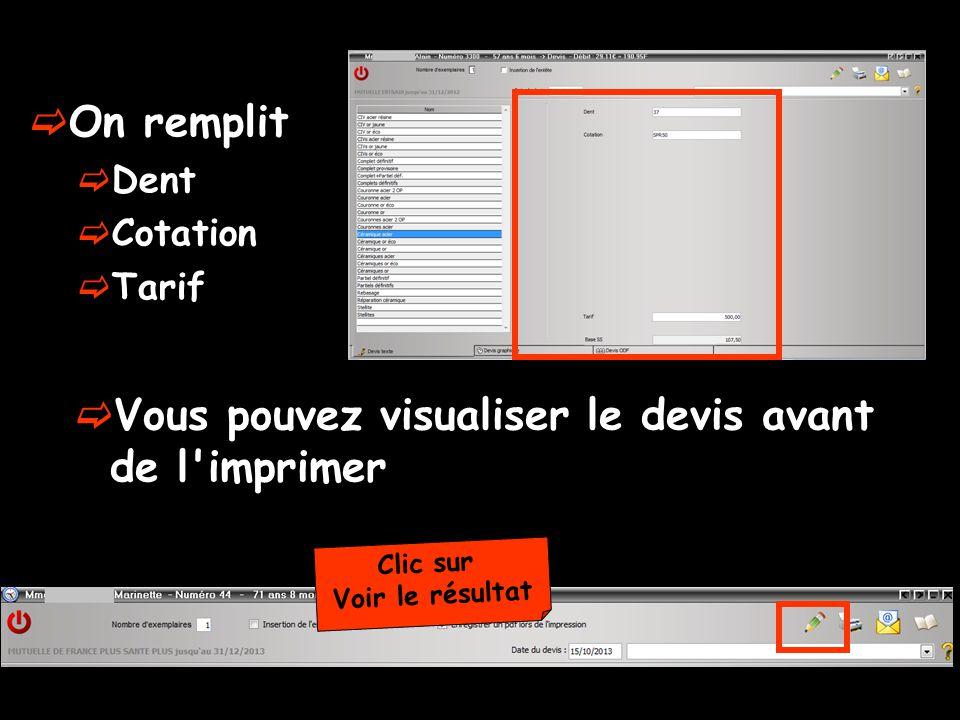 On remplit Dent Cotation Tarif Clic sur Voir le résultat Vous pouvez visualiser le devis avant de l imprimer