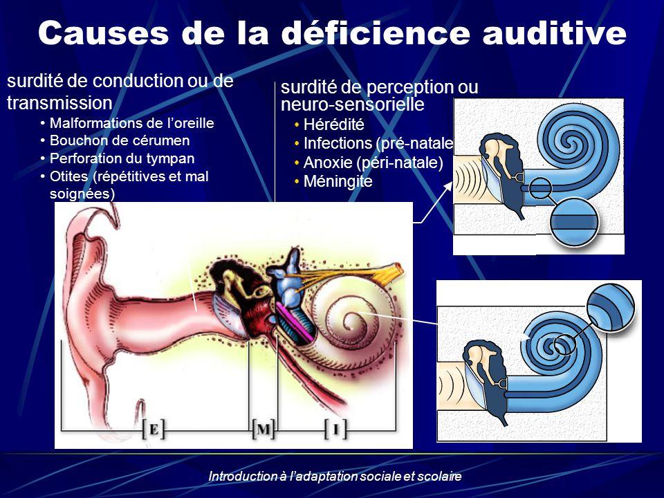 Introduction à ladaptation sociale et scolaire Causes de la déficience auditive surdité de conduction ou de transmission Malformations de loreille Bou