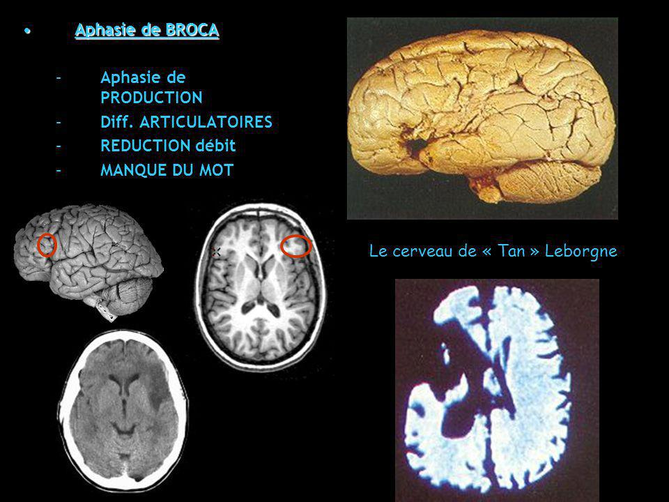 Aphasie de BROCAAphasie de BROCA –Aphasie de PRODUCTION –Diff. ARTICULATOIRES –REDUCTION débit –MANQUE DU MOT Le cerveau de « Tan » Leborgne