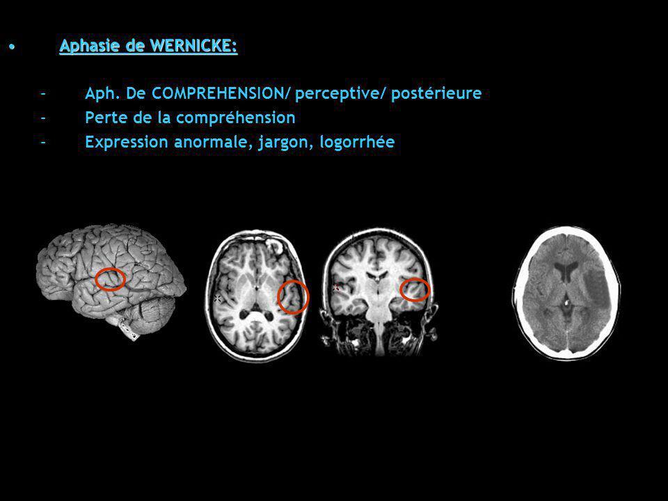 Aphasie de WERNICKE:Aphasie de WERNICKE: –Aph. De COMPREHENSION/ perceptive/ postérieure –Perte de la compréhension –Expression anormale, jargon, logo