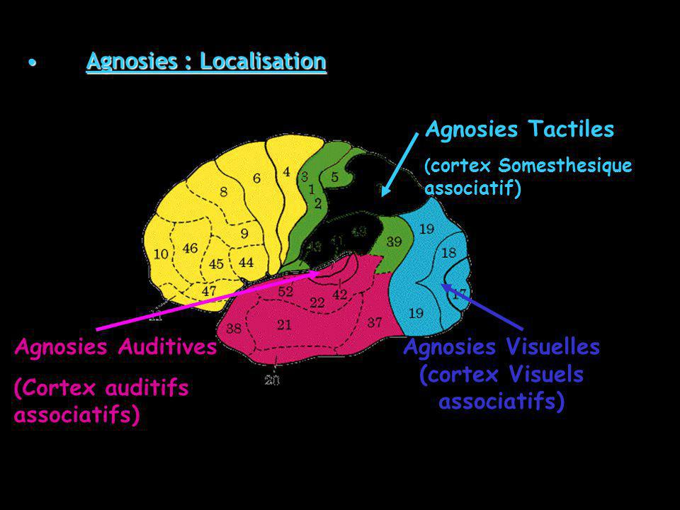Agnosies Tactiles ( cortex Somesthesique associatif) Agnosies Visuelles (cortex Visuels associatifs) Agnosies Auditives (Cortex auditifs associatifs) Agnosies : LocalisationAgnosies : Localisation